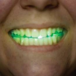 Glow Mouth Guard